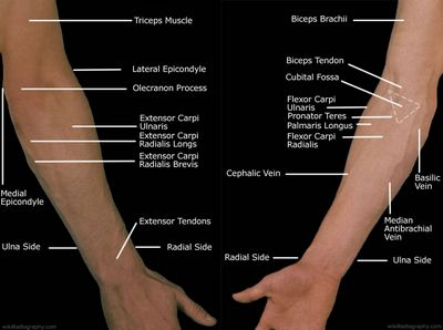 How Does Your Ulnar Nerve Injury Affect Your Wrist?