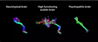 The Difference Between Autism and Neurotypical