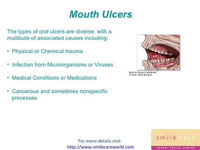 What Are the Different Types of Mouth Ulcers?