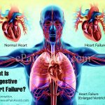 Congestive Heart Failure - Causes and Treatments